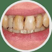 Dentalix - รีวิว - pantip - พันทิป