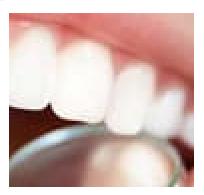 Dentalix - หาซื้อได้ที่ไหน - ขายที่ไหน - original - ซื้อที่ไหน