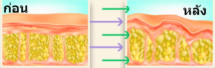 Garcinia Complex - อาหารเสริม - ราคาเท่าไร - ราคา