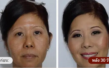 Beauty Bloom Skin - ราคาเท่าไร - อาหารเสริม - ราคา