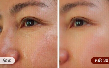 Beauty Bloom Skin - pantip - พันทิป - รีวิว